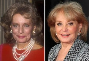barbara walters plastic surgery before after