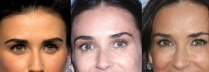 demi moore botox pictures