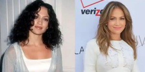 jennifer lopez plastic surgery pictures 2