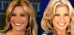vanna white plastic surgery photos before after