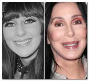 cher plastic surgery before after