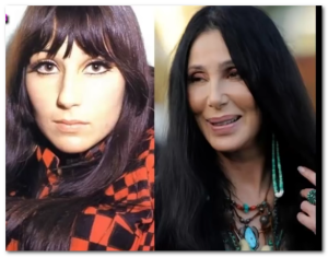cher plastic surgery before after pictures